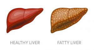 240 F 117299899 1ImsFgZZlOs6qGca6Rw4Sogmc9vHZTuQ 300x161 - Fatty Liver Disease:What it is and what to do about it
