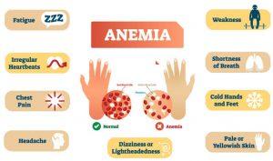 Symptoms 300x177 - What's Anemia? Causes, Symptoms & Treatments