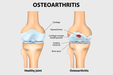 what is osteoarthritis - Osteoarthritis(OA): Symptoms, Treatments, and Causes